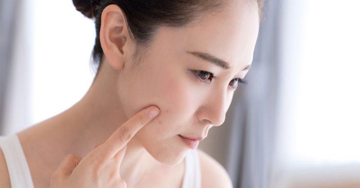 卸妝凝膠對付粉刺問題最有效?對付凹凸不平的毛孔的好方法