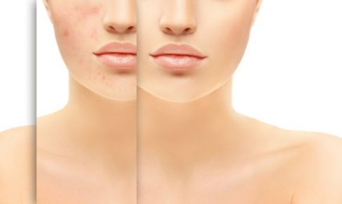 內包粉刺・閉鎖性粉刺除不盡!你的方法正確嗎?粉刺成因及處理方針全攻略