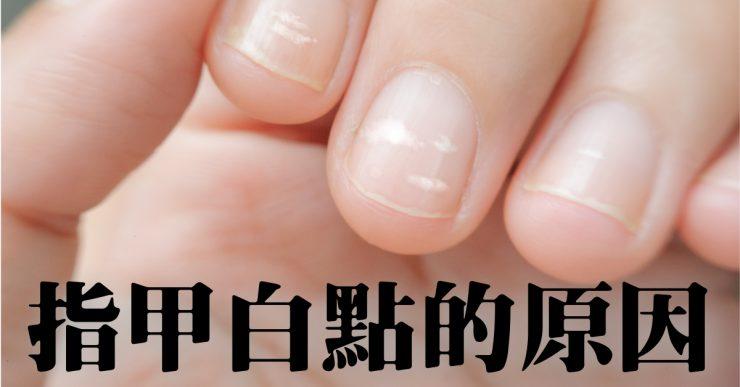 指甲有小白點是幸運的象徵? 白點的原因和解決方式!