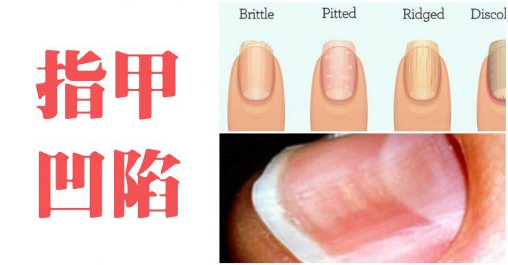 指甲 凹陷